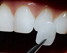 Naperville Cosmetic Dentists